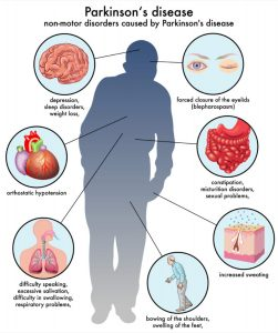 parkinson's-disease-symptoms